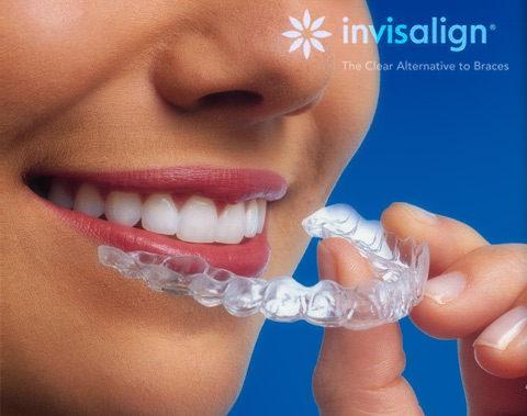 Invisalign - Clear Alternative to Braces