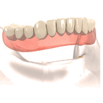 Conventional_Full_Denture
