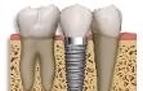Dental_Implants-111x94