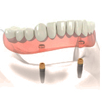 Implanted_Supported_Denture2