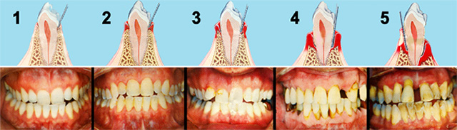 Gum Disease Treatment The One And Only Dental Care One